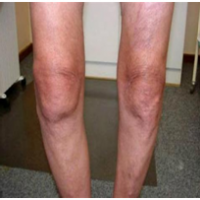Почему при артрозе коленного сустава необходим компресс с имбирем на почки?